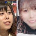 【姉妹格差】有村架純の姉・有村藍里が美容整形手術を公表 妹に似て姉妹感倍増w